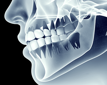 occlusal bite adjustment